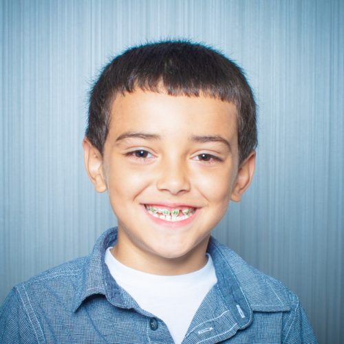 Comella Orthodontics Rochester New York Patient Portraits 5x5 17 500x500 - Invisalign