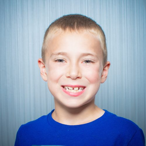 Comella Orthodontics Rochester New York Patient Portraits 5x5 25 500x500 - Invisalign