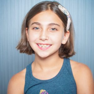 Comella Orthodontics Rochester New York Patient Portraits 8x10 23 300x300 - Our Smiles | Our Reviews