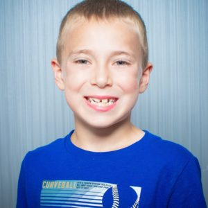 Comella Orthodontics Rochester New York Patient Portraits 8x10 27 300x300 - Our Smiles | Our Reviews