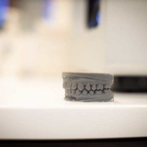 Comella Orthodontics Technology Rochester New York 46 500x500 - Straighter Teeth in Only 6 Months
